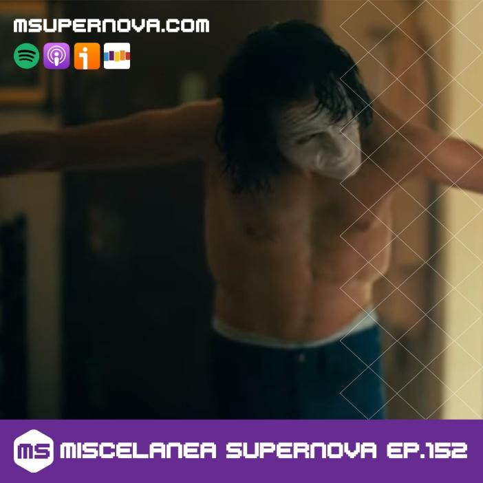 msupernova ep152